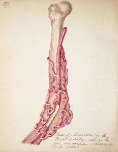 John Hatton artery ill